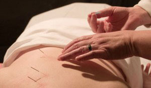 Acupuncture in Rapid City, South Dakota